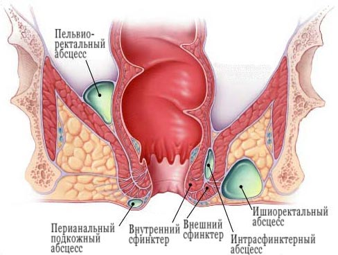 Лечение пароанальных желез