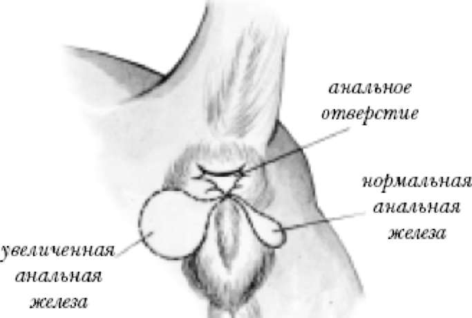Удаление паранальных желез при воспалении