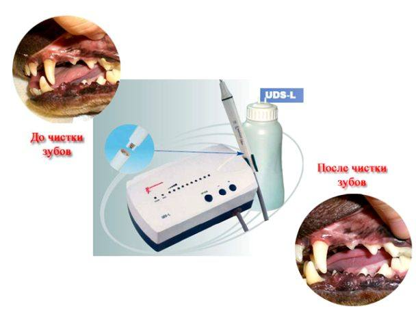 Зубной камень — известковое отложение, образующееся в полости рта